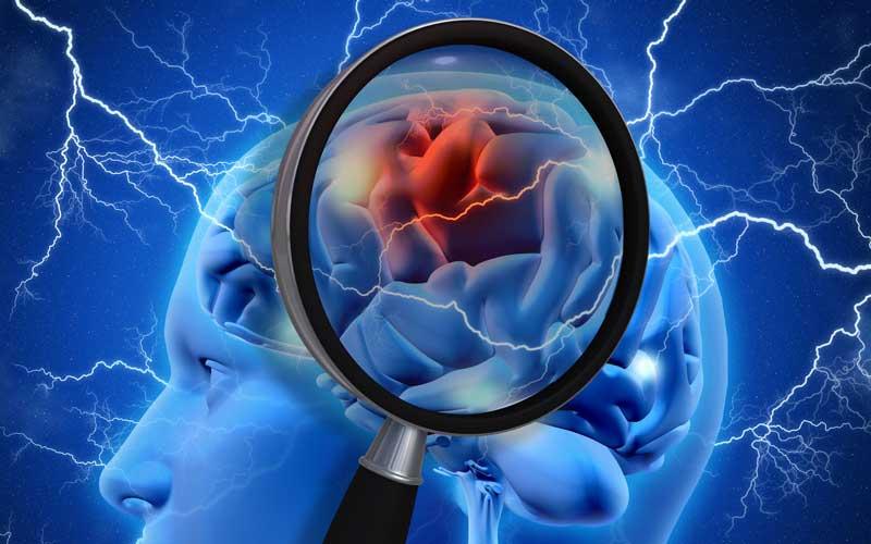 Enfermedad cerebro-vascular